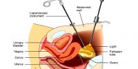 Laparoscopy for IVF