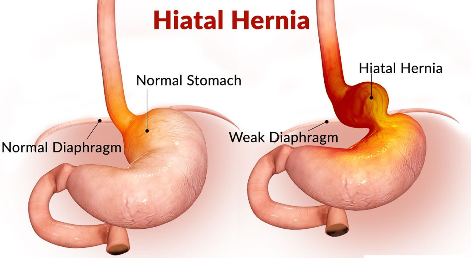 Hernia Surgery in Nigeria - laparoscopysurgeries