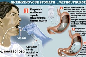 Gastric Baloon Surgery in Bangalore