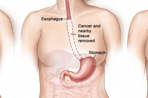 Laparoscopic Esophagectomy in Bangalore