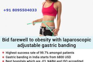 Laparoscopic Gastric Banding in Bangalore