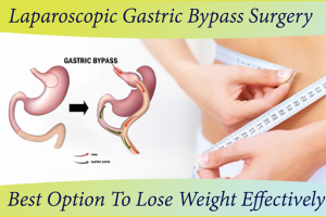 Laparoscopic Gastric Bypass Surgery cost in Bangalore