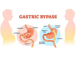 Laparoscopic Gastric Bypass cost in Bangalore