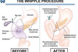 Laparoscopic Whipple's